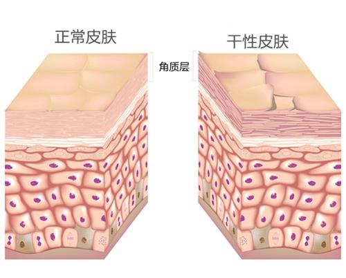 正常皮肤和干性皮肤角质层对比