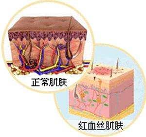 肌肤敏感红血丝和内调的关系插图(1)
