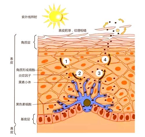 祛斑科普:内调与斑点的关联性