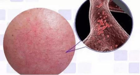 肌肤敏感红血丝和内调的关系插图