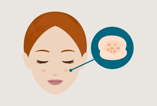 黄褐斑产生的原因、治疗与预防