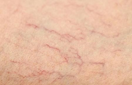 脸部红血丝产生原因、正确改善和治疗方法