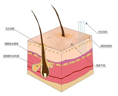 伊的家专业护肤达人解答:肌肤屏障受损怎么办?插图