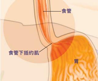 解胃食管反流病