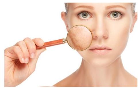 毛孔粗大的原因是什么?毛孔粗大的3种类型